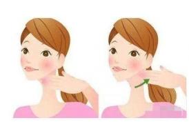 上海改脸型手术会不会留下疤痕 慎重啦!