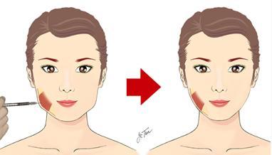 脸大打瘦脸针有效果吗