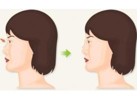 上海注射玻尿酸隆鼻有没有危害,美莱注射不可小觑!