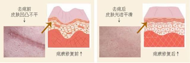 上海像素激光去疤效果