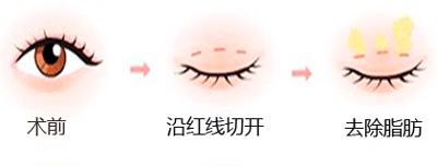 上海做韩式三点双眼皮过程