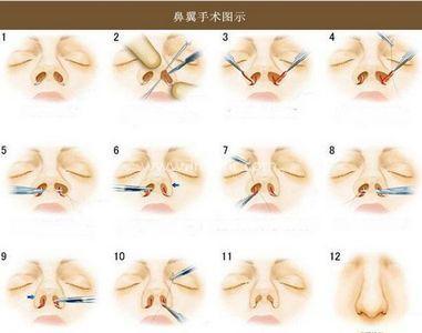 上海鼻翼整形的价格多少