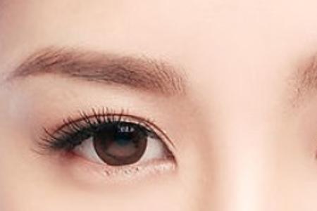 双眼皮手术方法哪种好