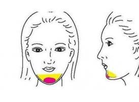 玻尿酸丰下巴可以维持多久