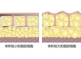 上海美莱多维立体吸脂轻松减肥瘦身