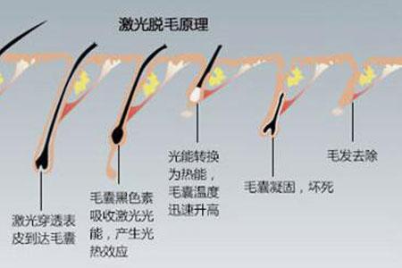 上海做激光脱毛有哪些优势