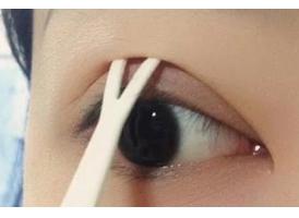 上海双眼皮手术多少钱 双眼皮术后几天拆线