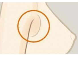 上海做副乳切除手术多少钱 副乳切除效果好吗