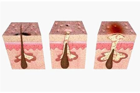 激光祛痘术后护理注意事项有哪些