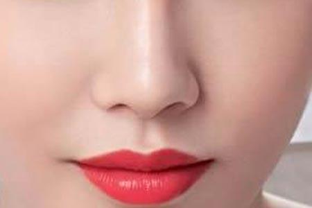 歪鼻子矫正术后要怎么护理