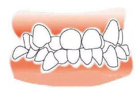 牙齿地包天的矫正方法有哪些