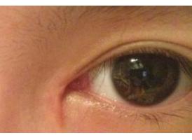 双眼皮失败的情况有哪些 哪家医院修复双眼皮效果好