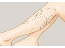 上海做激光脱腿毛多少钱 激光脱腿毛做几次