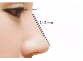 上海假体隆鼻手术过程 隆鼻术后鼻部歪斜怎么办