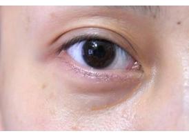 上海激光去黑眼圈多少钱 去黑眼圈术后注意事项